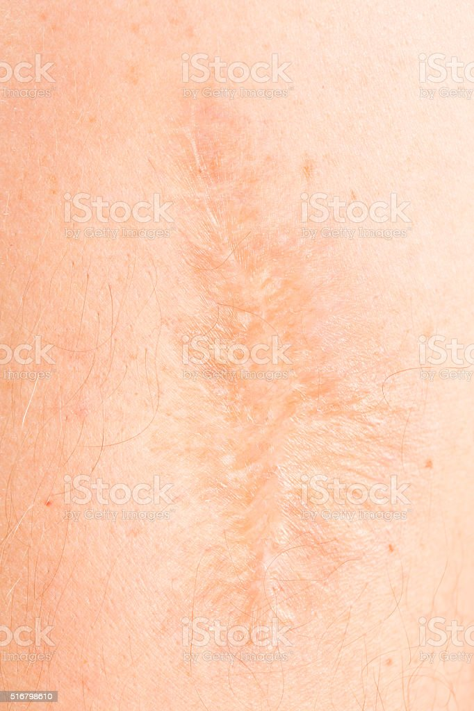 Arm with big scar stock photo
