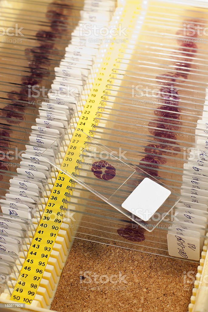 arranged histopathology slides in container royalty-free stock photo