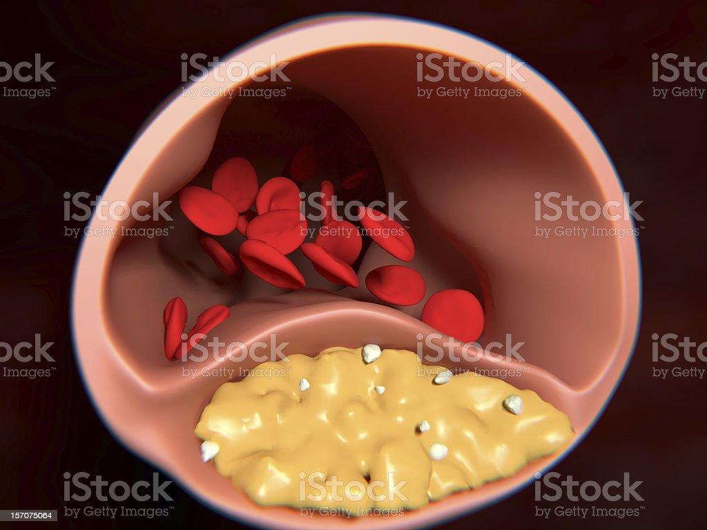 Arteriosclerosis royalty-free stock photo