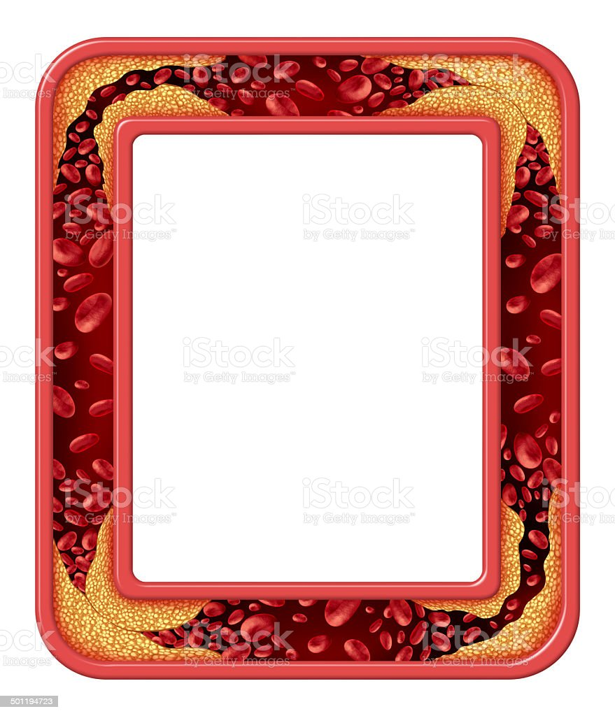 Artery Disease Frame royalty-free stock photo