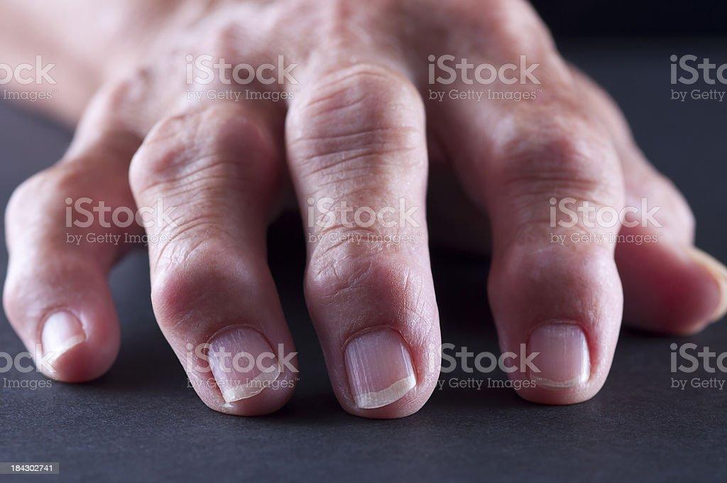 Arthitis Hand stock photo