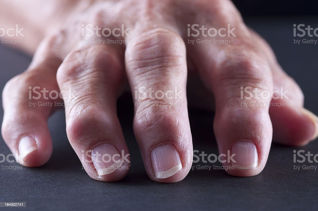 Arthitis Hand stock photo