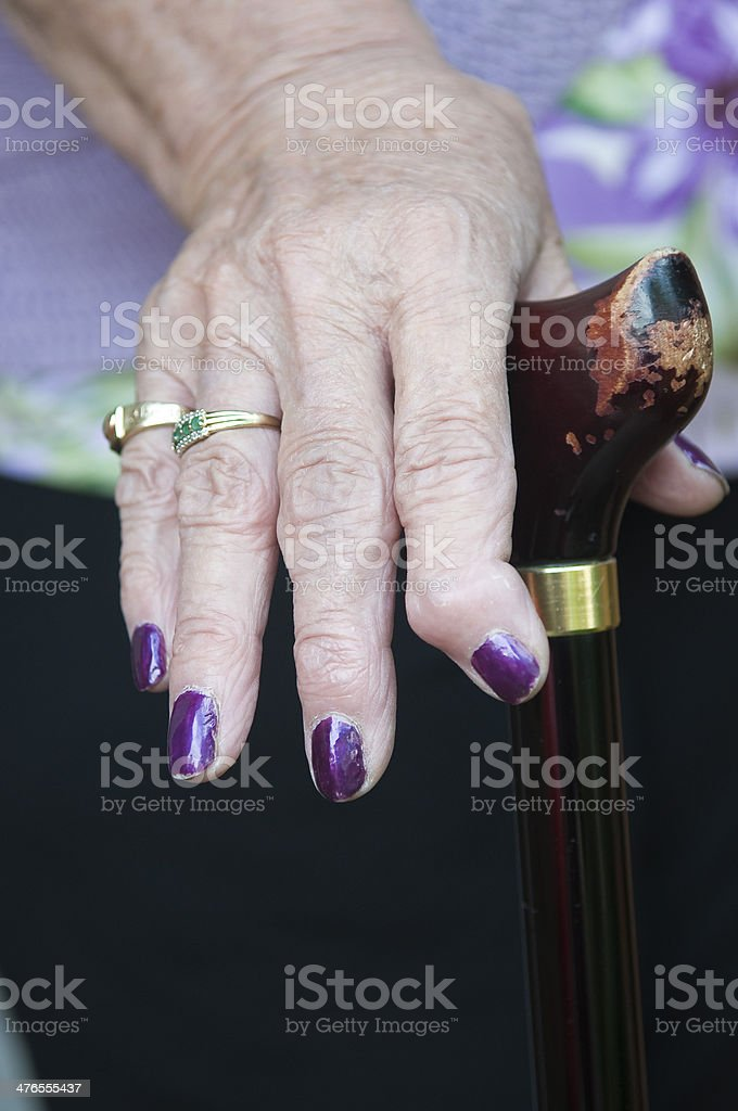 Arthritic Hand and walking stick royalty-free stock photo