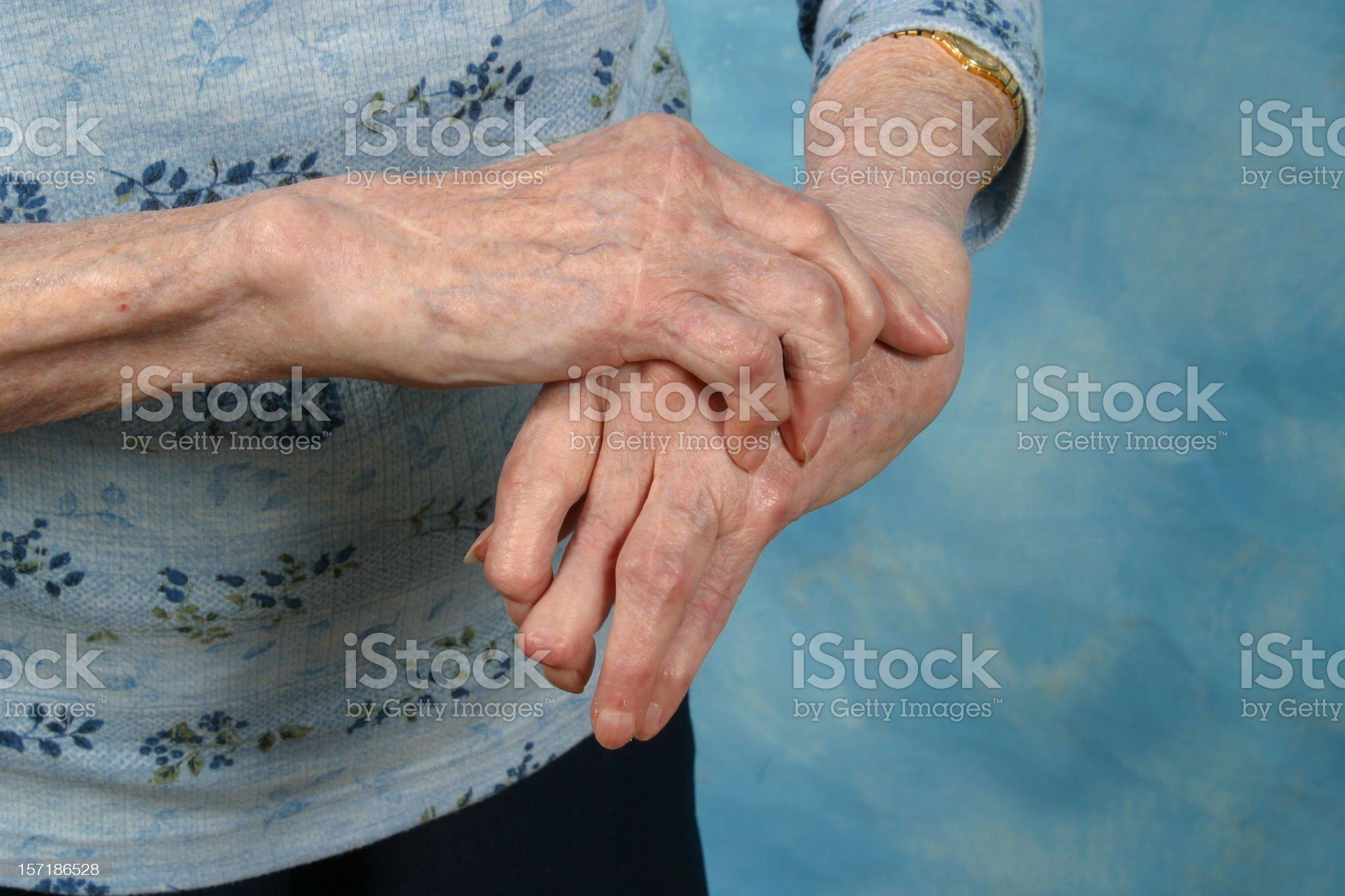 Arthritic Hands Arthritis Rheumatism royalty-free stock photo