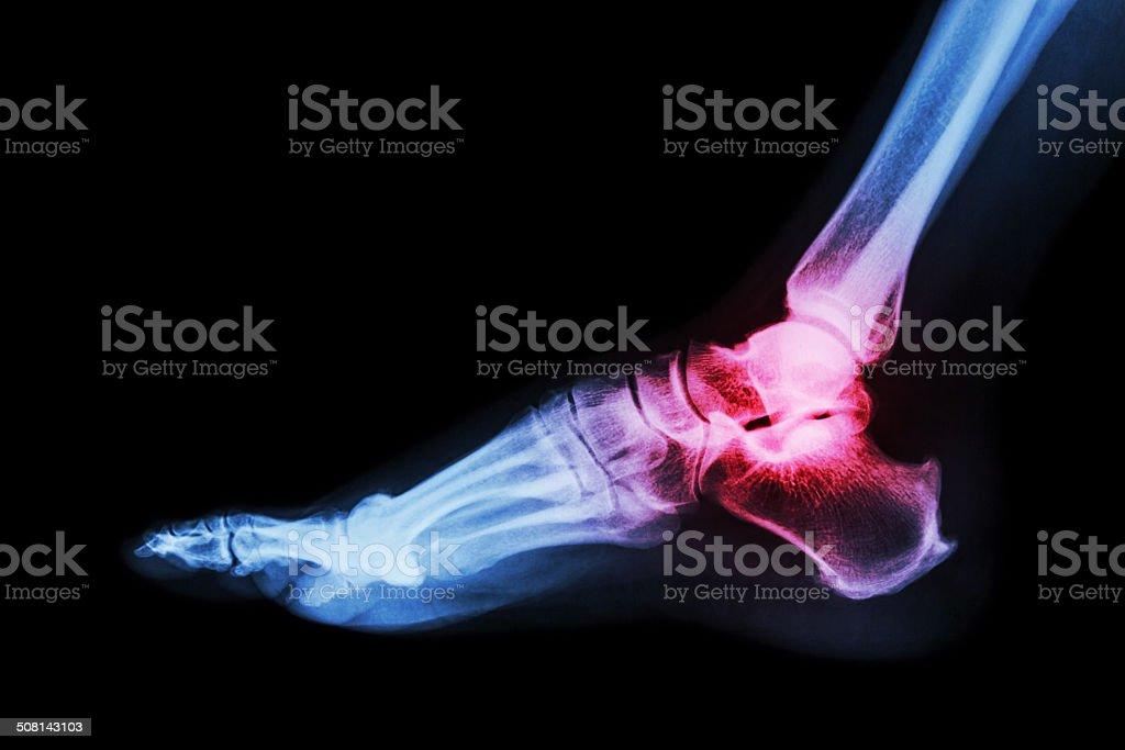 Arthritis at ankle joint (Gout , Rheumatoid arthritis) stock photo