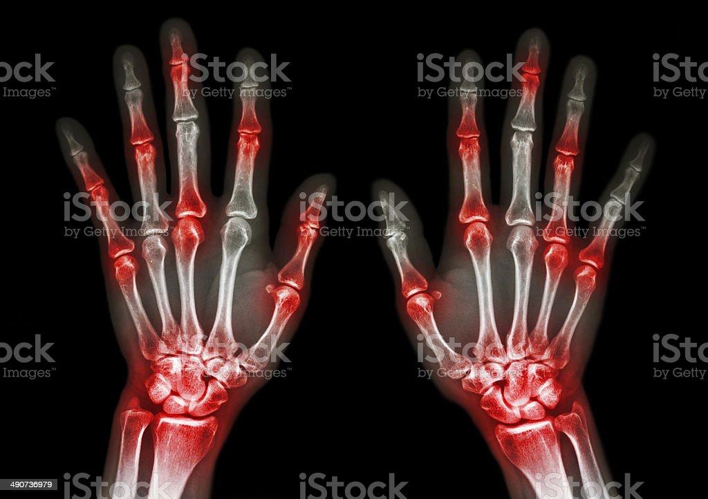 arthritis at multiple joint of hand (Gout,Rheumatoid) stock photo