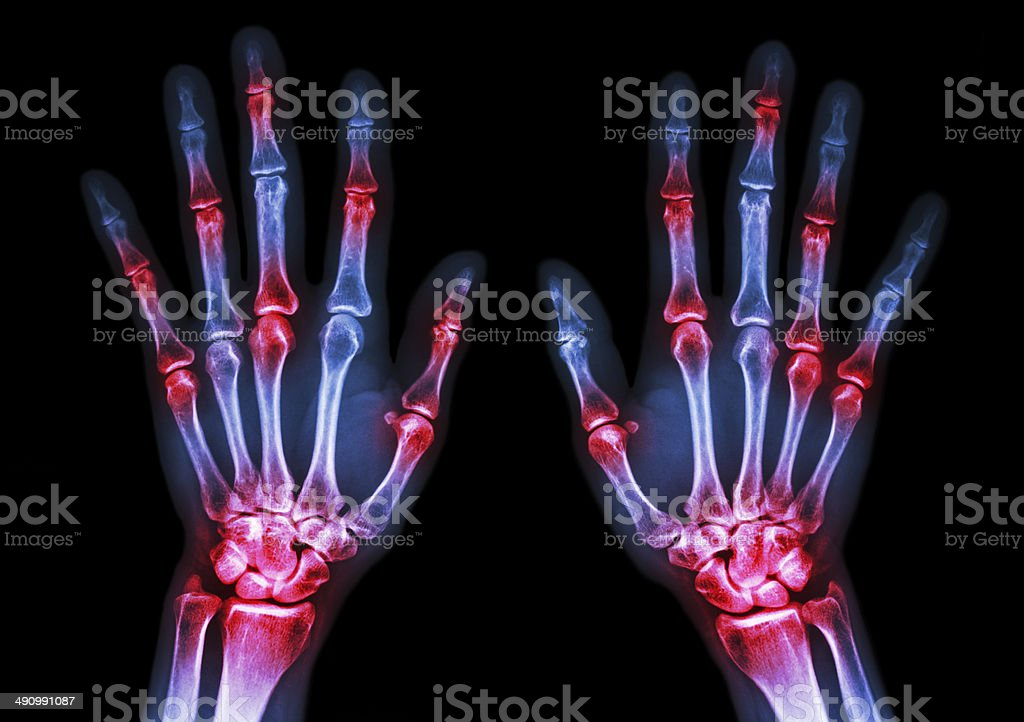 arthritis at multiple joint of hands(Gout,Rheumatoid) stock photo