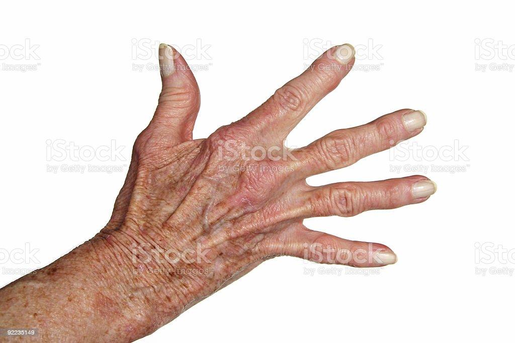 Arthritis hand royalty-free stock photo