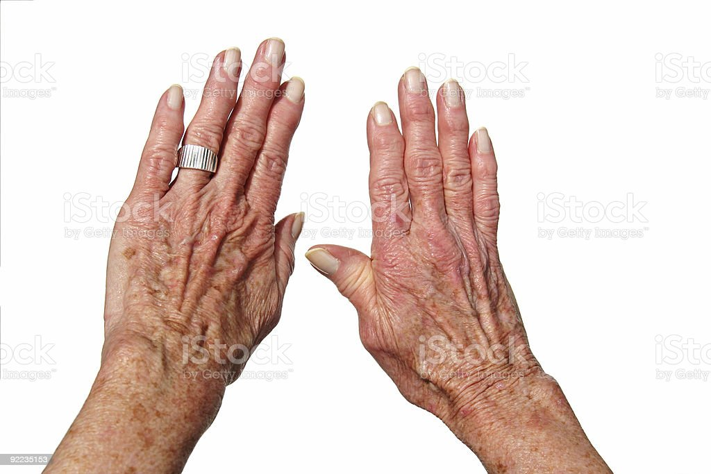 Arthritis hand royalty-free stock photo