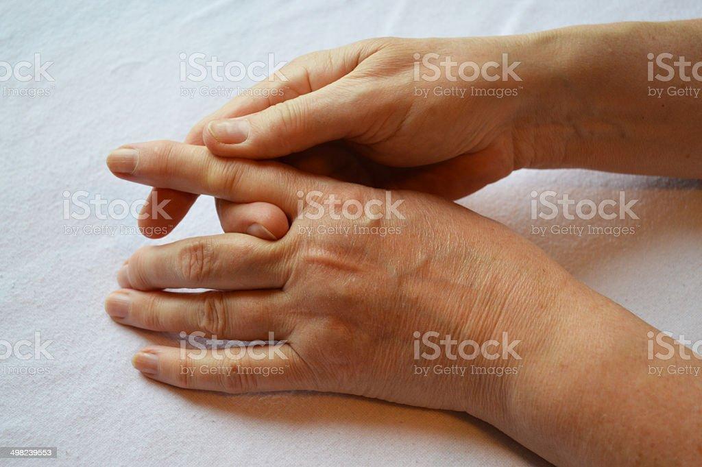 Arthritis Hands royalty-free stock photo