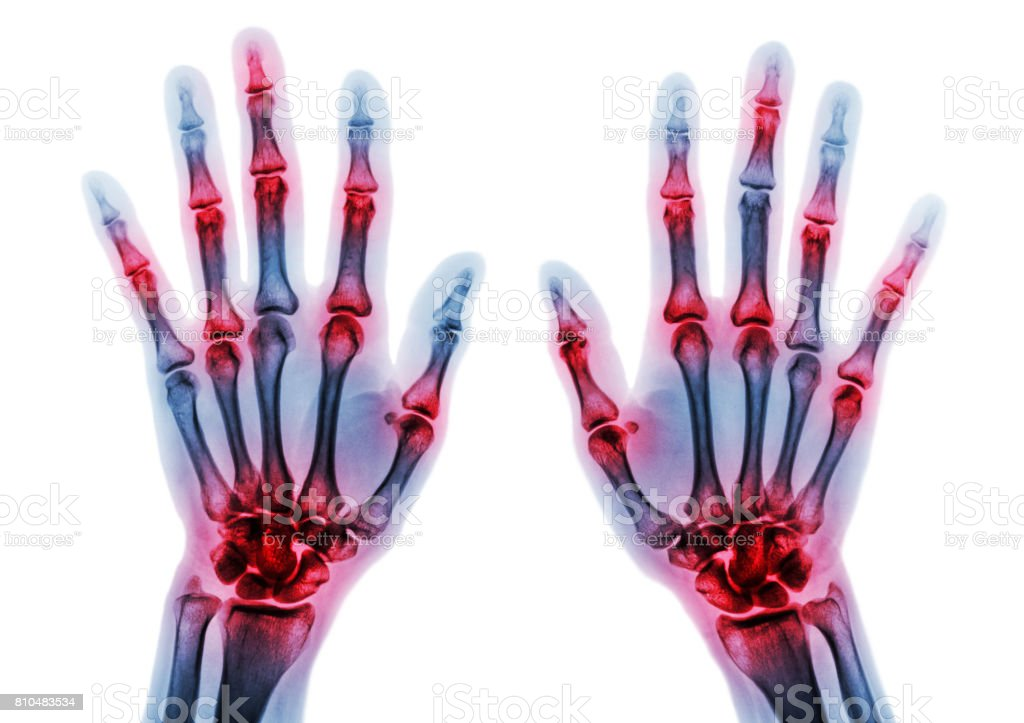 Arthritis multiple joint of fingers . Film x-ray of both hands and wrists . stock photo