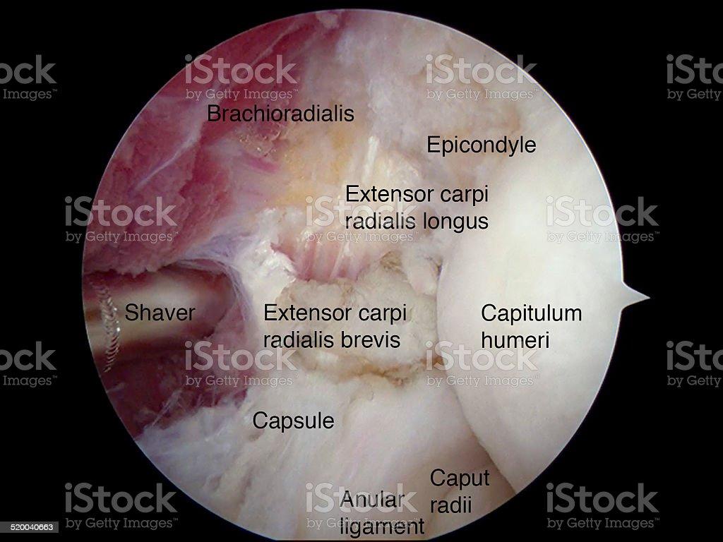 Arthroscopic tennis elbow surgery stock photo