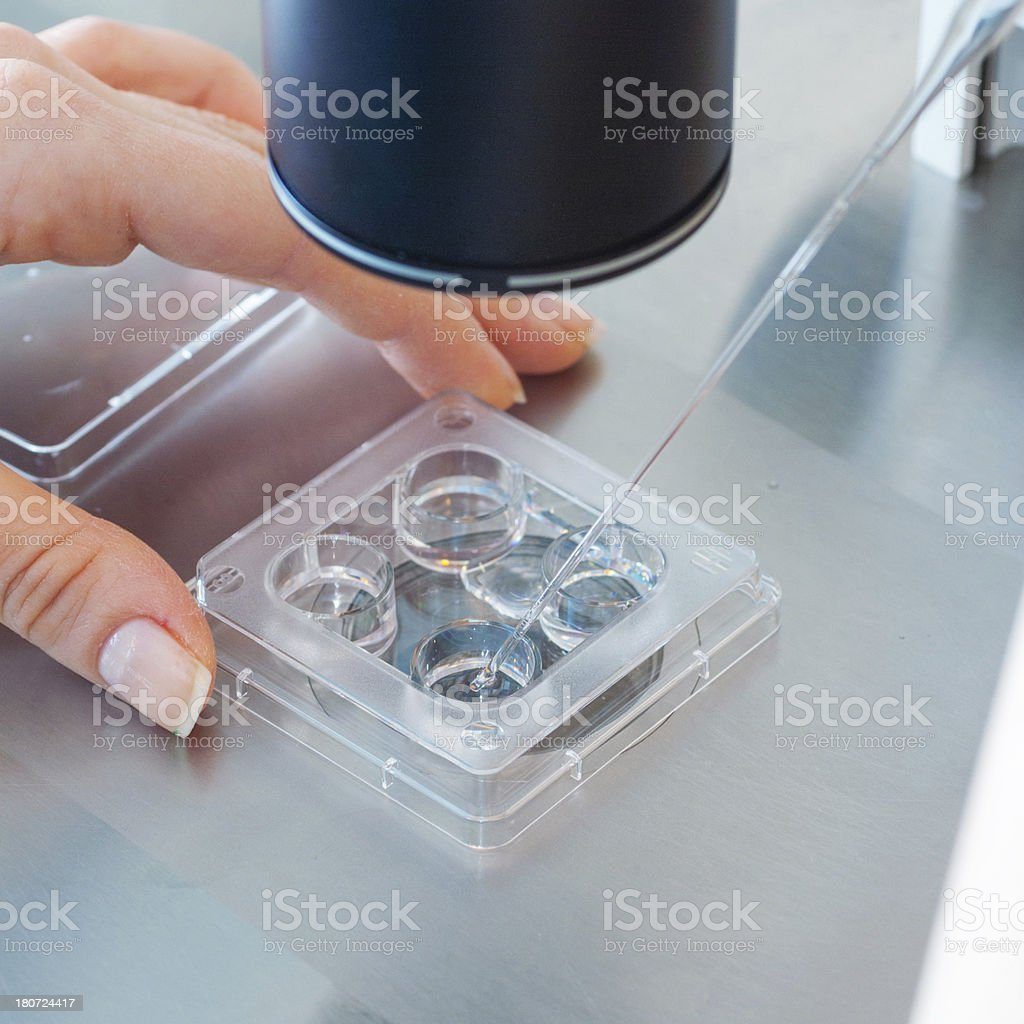 Artificial insemination procedure royalty-free stock photo