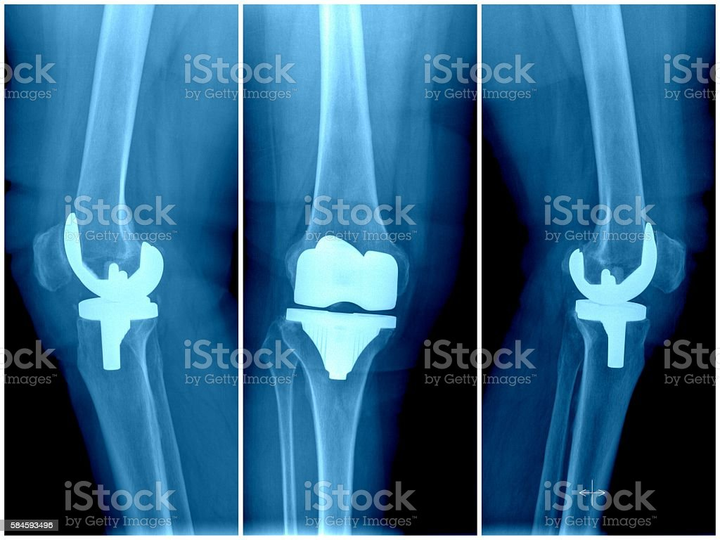Artificial knee joint stock photo