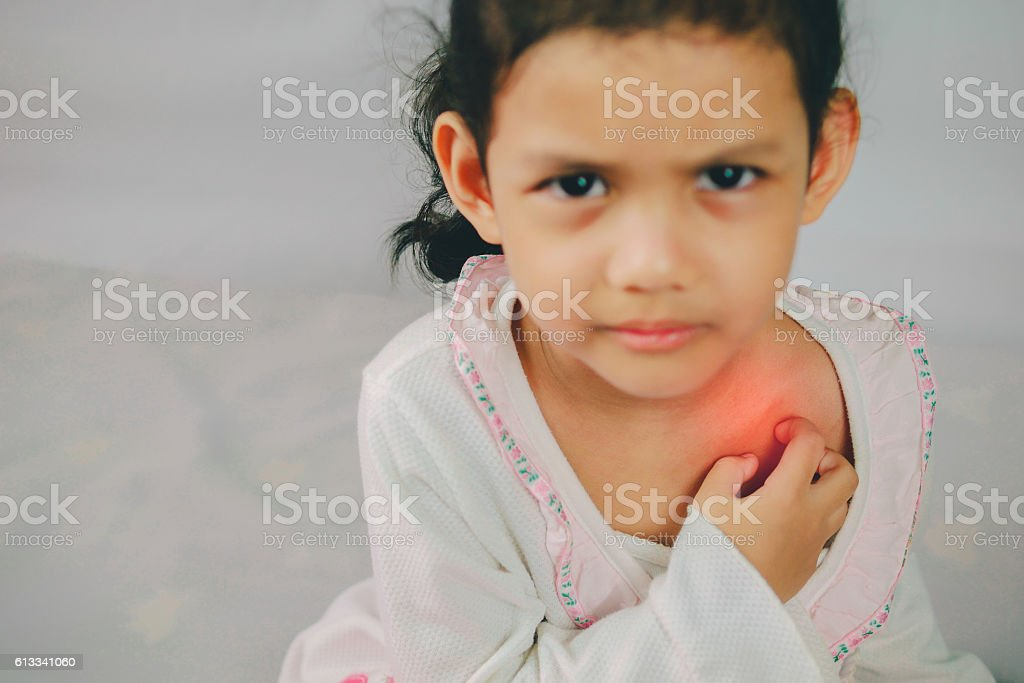 asia young girl scratch the itch with hand ,neck, itching stock photo