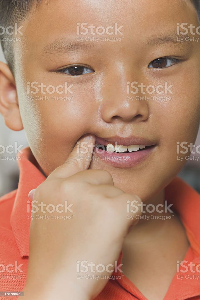 Asian boy just losing his milk tooth stock photo