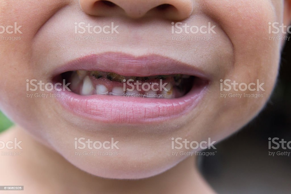 Asian boy smile with decayed teeth stock photo