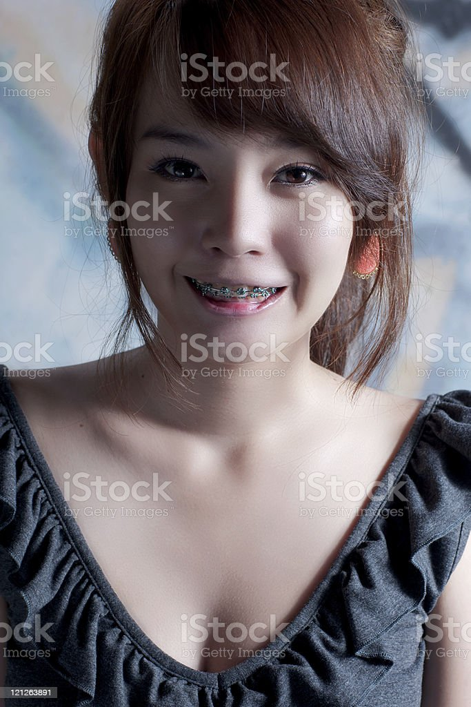 Asian braces girl royalty-free stock photo