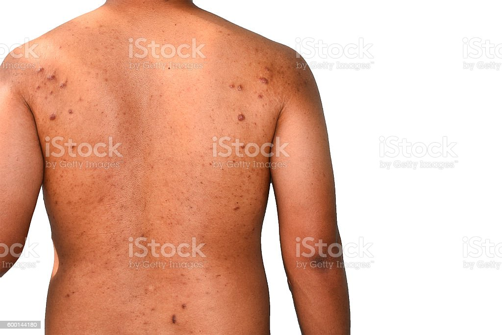 asian keloid scar on back stock photo