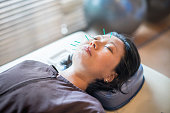 Asian woman getting acupuncture