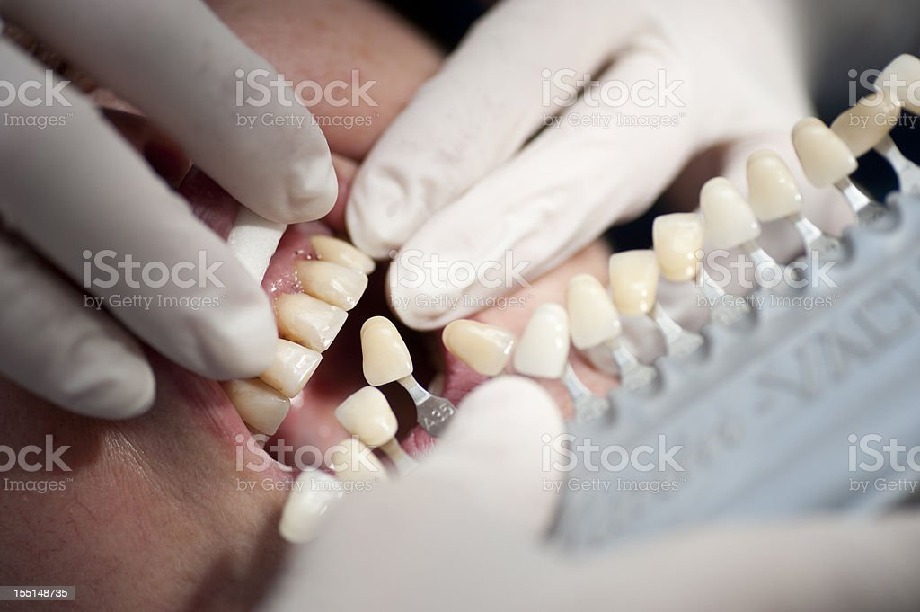 at the dentist choose white of teeth and finish prothesis stock photo