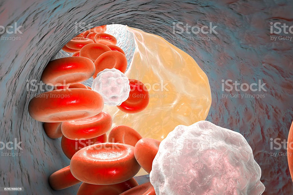 Atheroma plaque inside artery stock photo