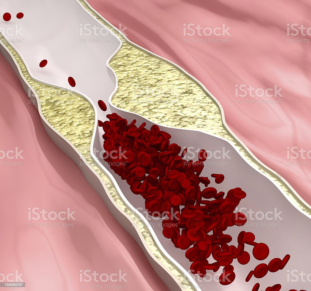 Atherosclerosis disease - Clogged Arteries (Arterial Plaque) stock photo