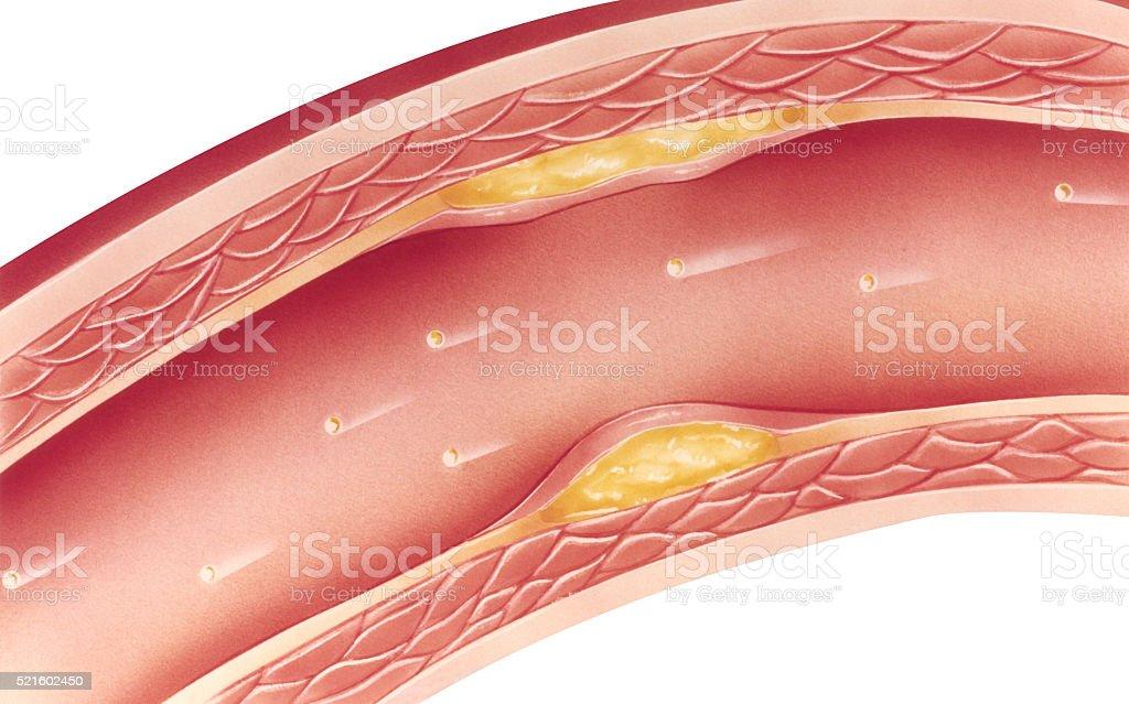Atherosclerosis - Mild stock photo