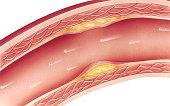 Atherosclerosis - Mild