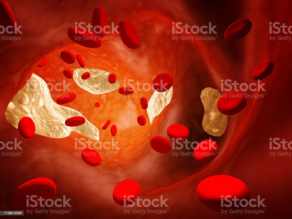 Atherosclerosis royalty-free stock photo