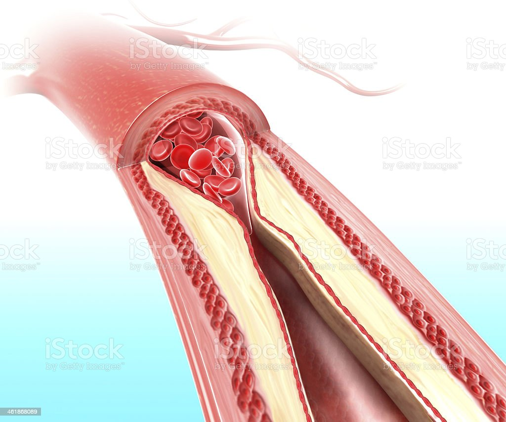 Athersclerosis in artery caused by cholesterol plaque stock photo