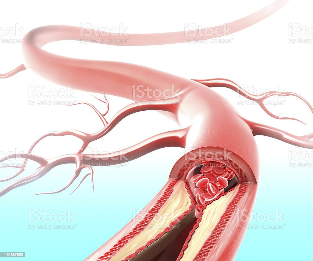 Athersclerosis in artery stock photo