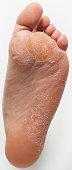 Athlete's Foot and Callus