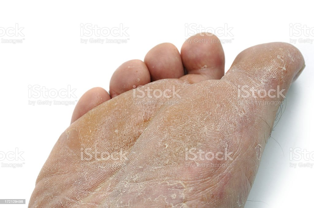 athletes foot, dried rough skin stock photo