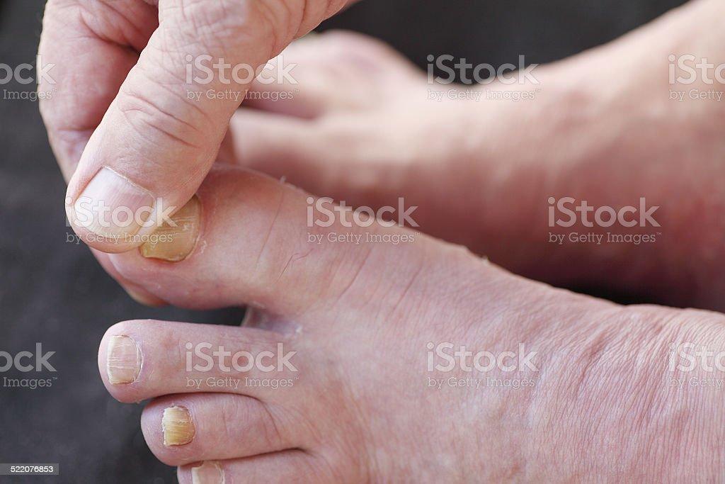 Athletes foot dry skin on man stock photo