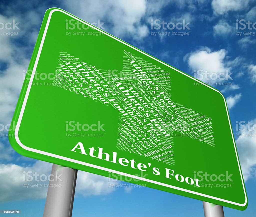 Athlete's Foot Shows Tinea Pedis And Ailment stock photo