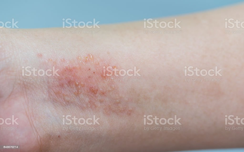 atopic dermatitis symptom skin stock photo