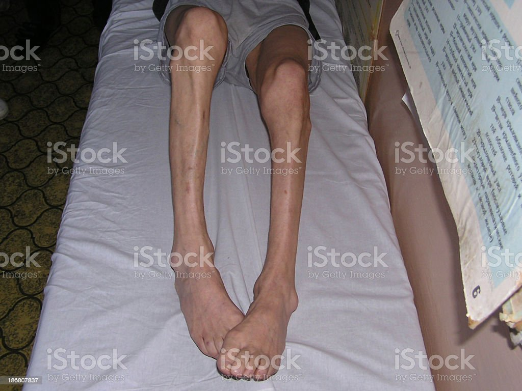Atrophy of legs royalty-free stock photo