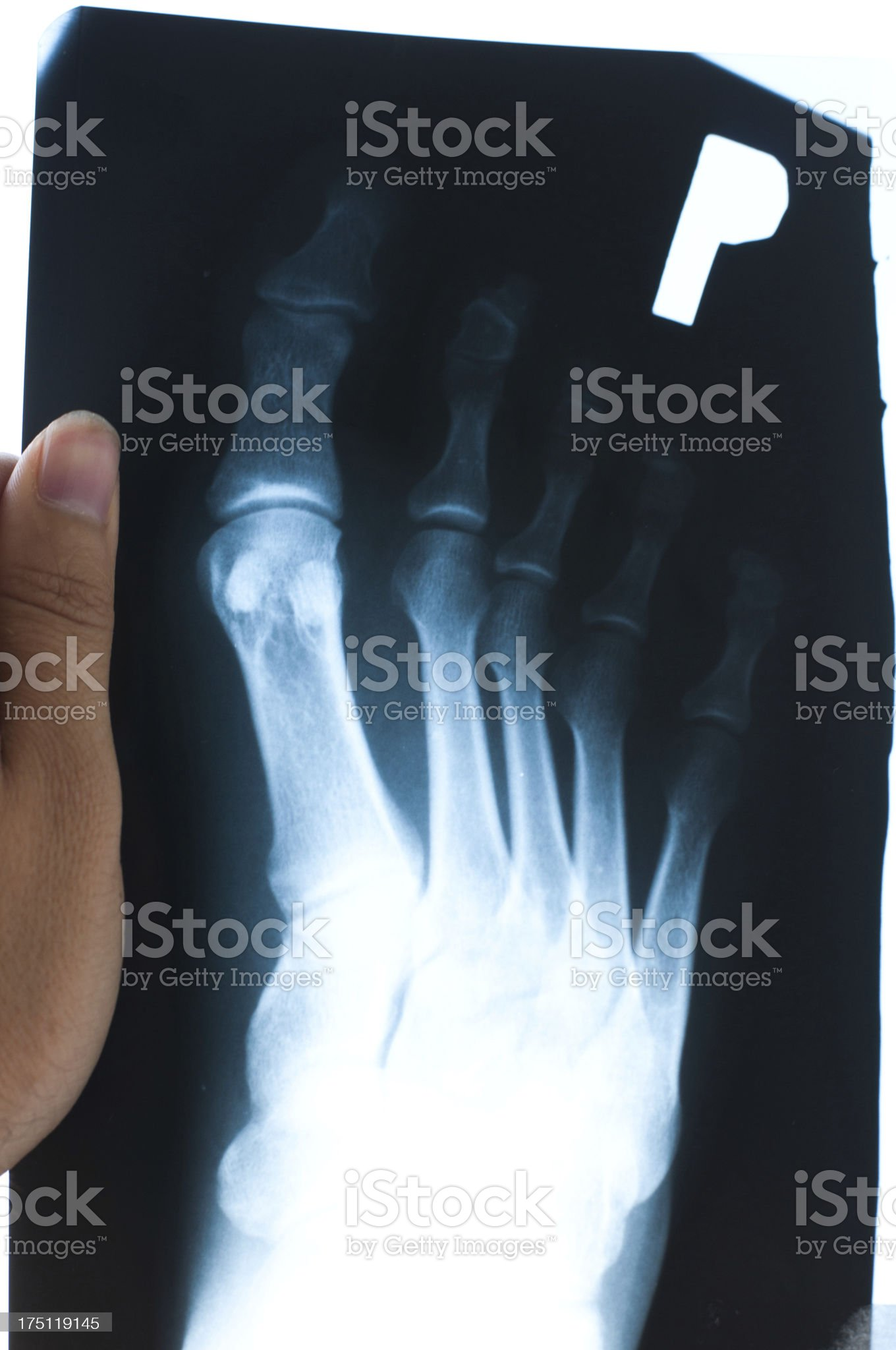 Authentic x-ray of male foot royalty-free stock photo