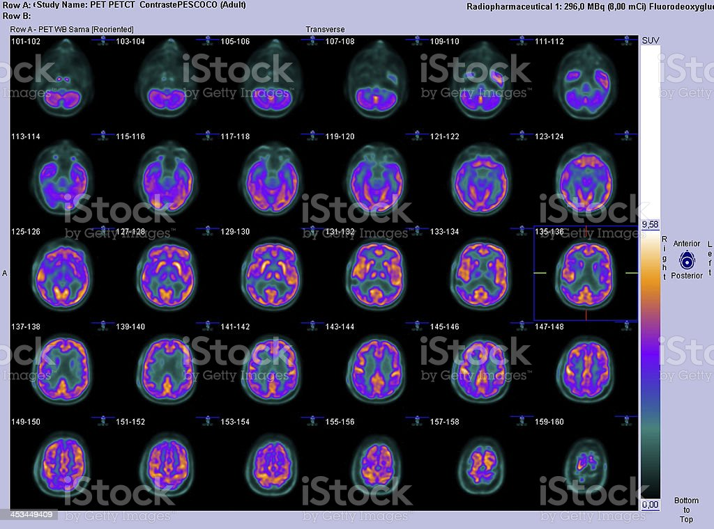 PET-CT axial scan of the brain stock photo