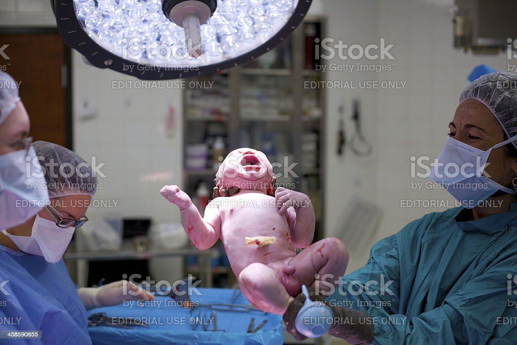 Baby born by caesarean-section stock photo