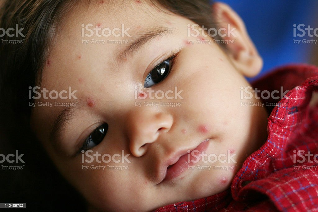 Baby boy with mid-stage chicken pox stock photo