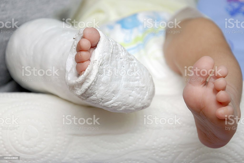 Baby Foot In Bandage And Cast stock photo