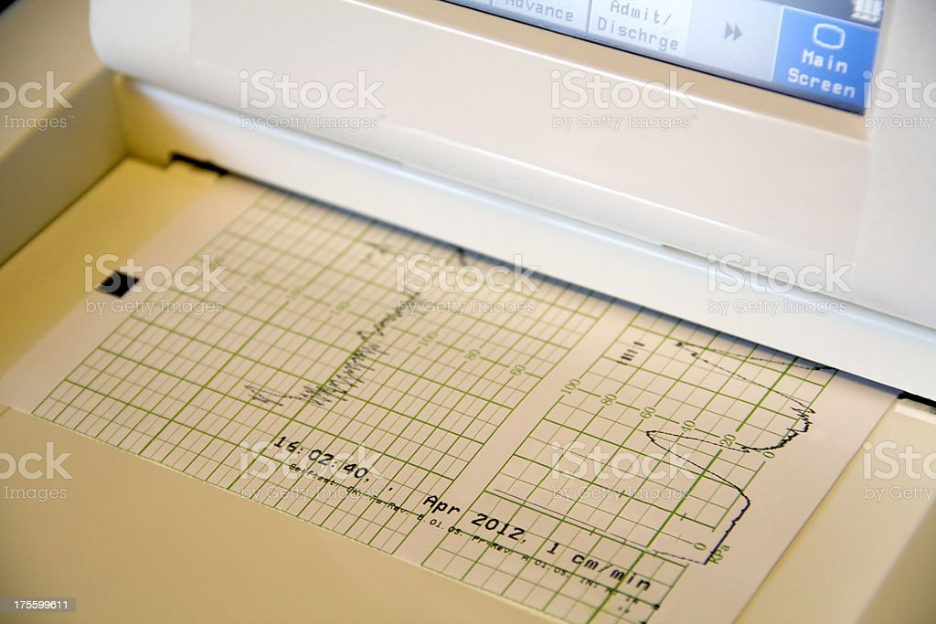 Baby heart rate monitor and printout royalty-free stock photo