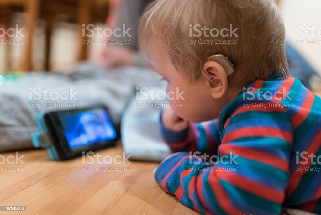 Baby with hearing aid stock photo