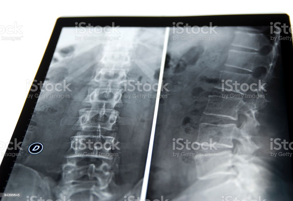 back and spine xray royalty-free stock photo