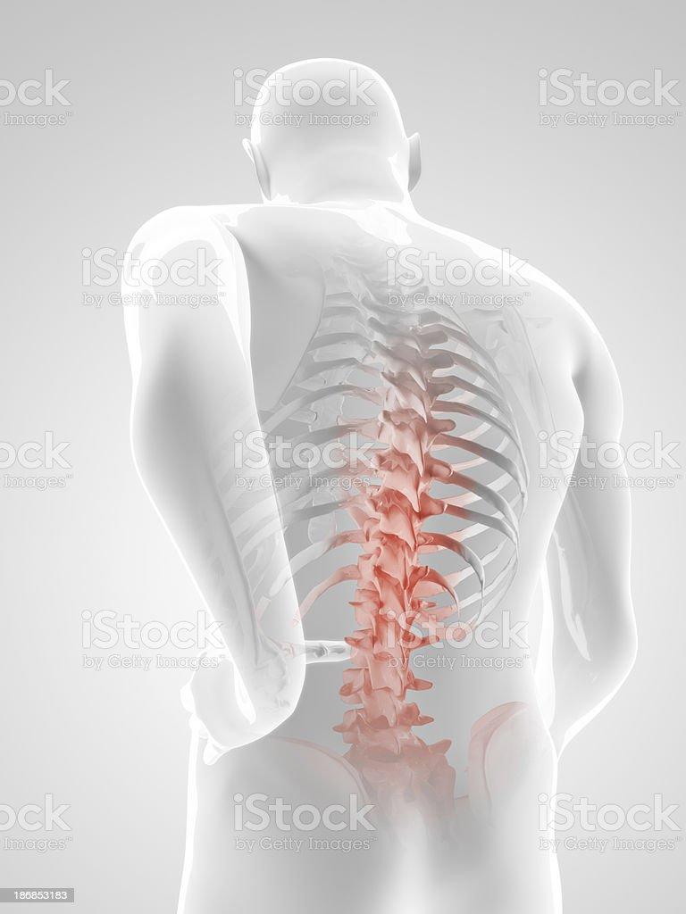 Back pain Illustration stock photo