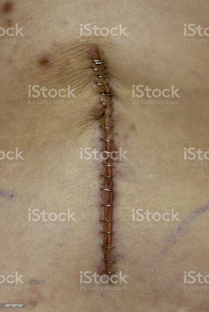 Back Surgery royalty-free stock photo