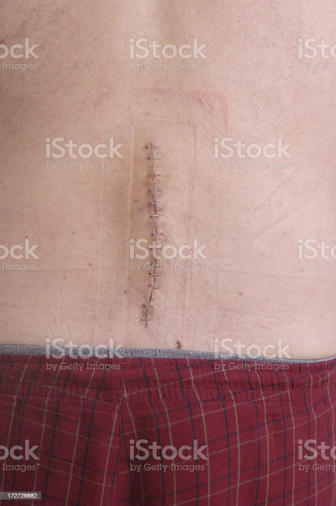 Back Surgery Series royalty-free stock photo