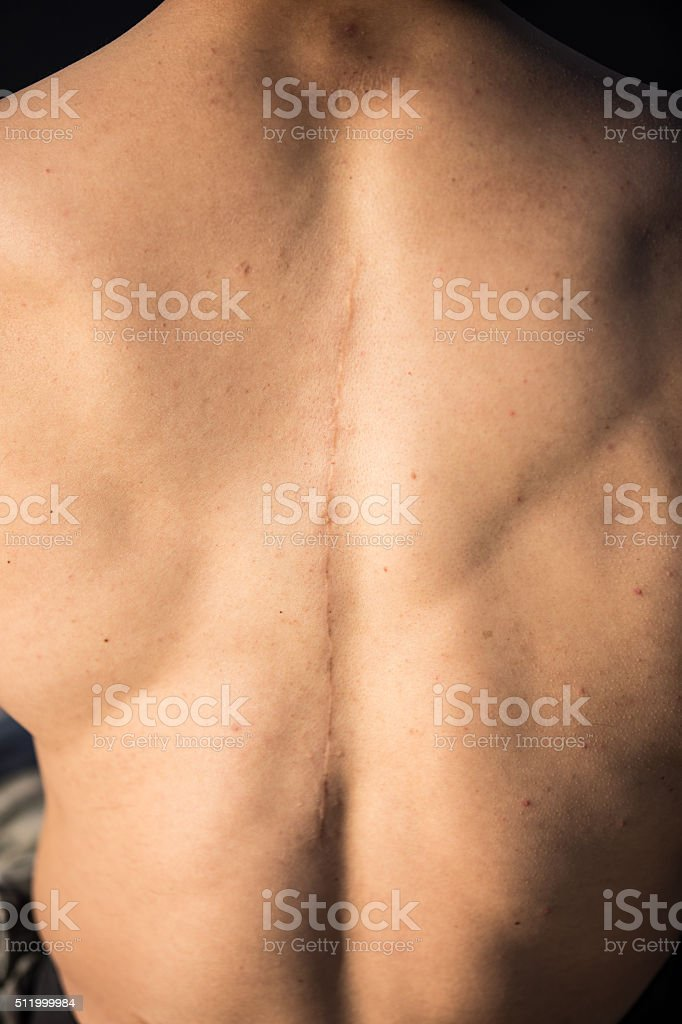 Back Surgery Series stock photo